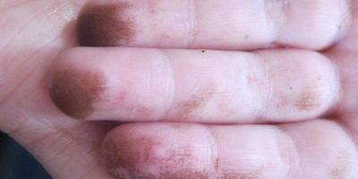 Срочно! Чем отмыть руки от маслят?