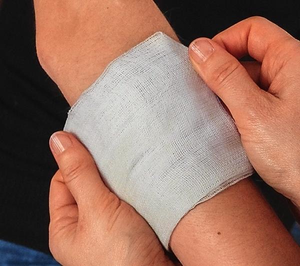Царапину или ссадину обработайте этим раствором, затем наложите на больное место пропитанную настойкой марлевую повязку и зафиксируйте бинтом.