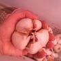 Чеснок сорта «Рокамболь» - личный опыт выращивания
