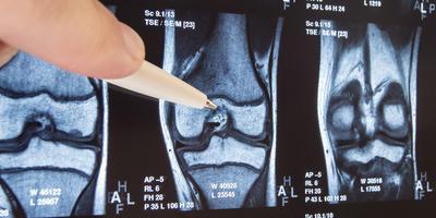Наука против боли: современные технологии эндопротезирования
