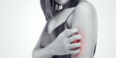 Аллергия на укусы насекомых: чем это опасно и как помочь пострадавшему