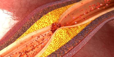Правда и мифы о холестерине