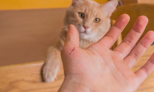 Что делать если сильно порезал руку