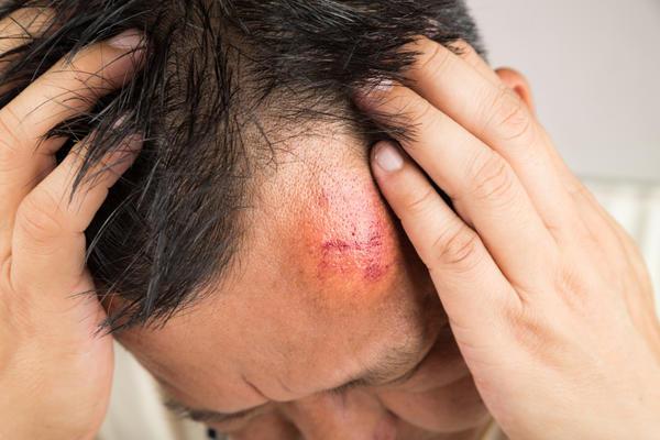 При травмировании головы может пострадать головной мозг