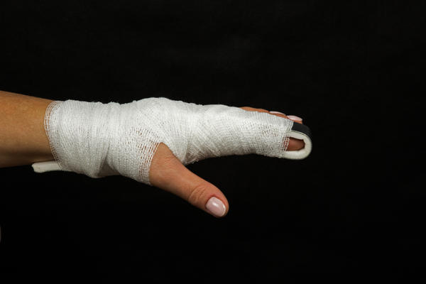 Лонгета при переломе пальца