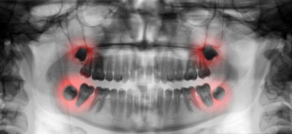Зубы мудрости могут представлять опасность